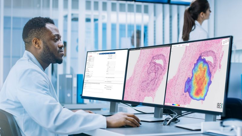 AI-based cancer detection rolled out for NHS Patients by Ibex and LDPath.