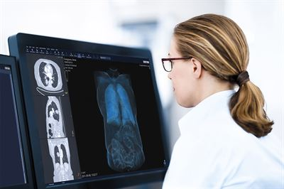 Sectra wins contract in Greater Manchester for its medical imaging solution.